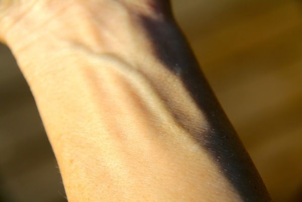Veins Colour